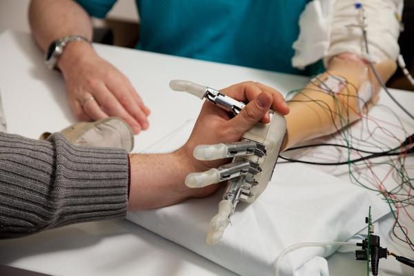 The bionic hand